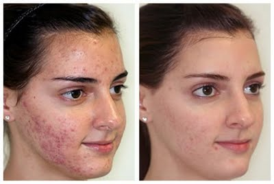 microderm-before-after