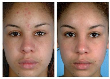 Microdermabrasion Before and After Gallery - Only Top Reviews